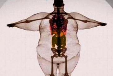 Ooops! Che ci fanno le mie radiografie sul web?