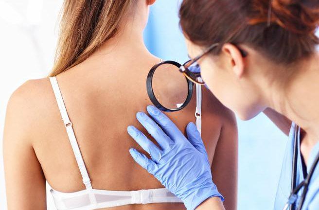 Tumori della pelle non melanoma: Toscana leader in diagnosi e cura